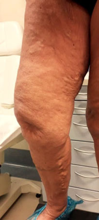 Best Varicose veins treatment in India