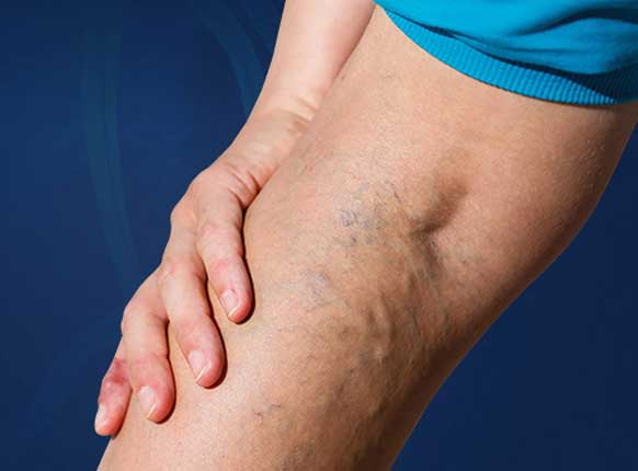 Best Varicose vein treatment without surgery in India